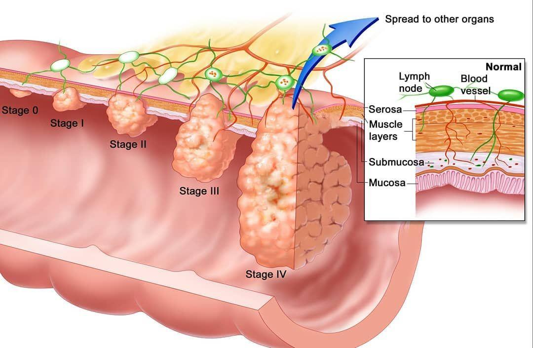 cancer de prostata etapa 4)