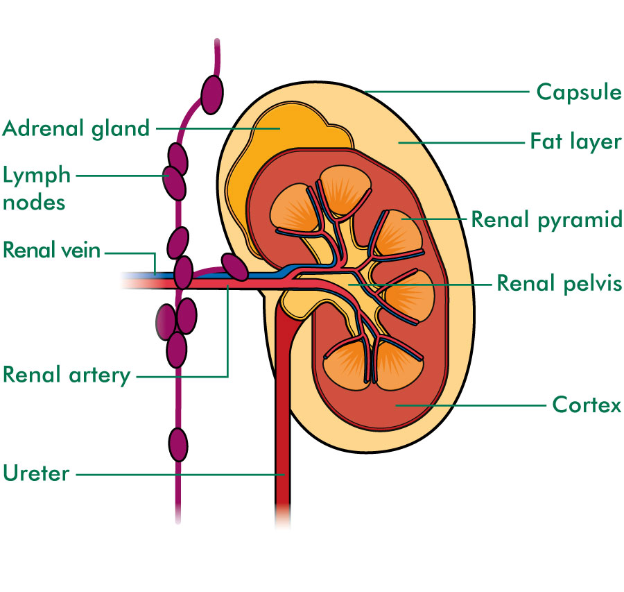 cancer of renal vein)