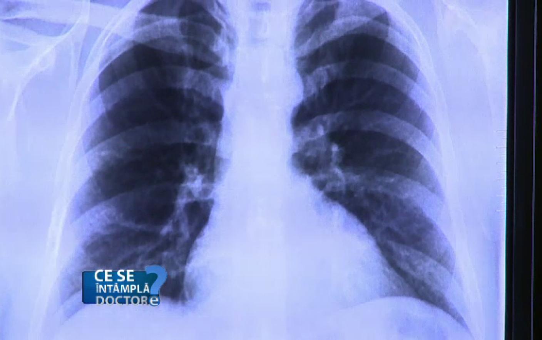 tumoare la plamani simptome