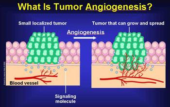 benign cancer of blood vessels)