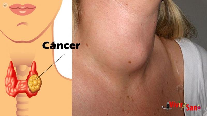 cancer laringe pronostico