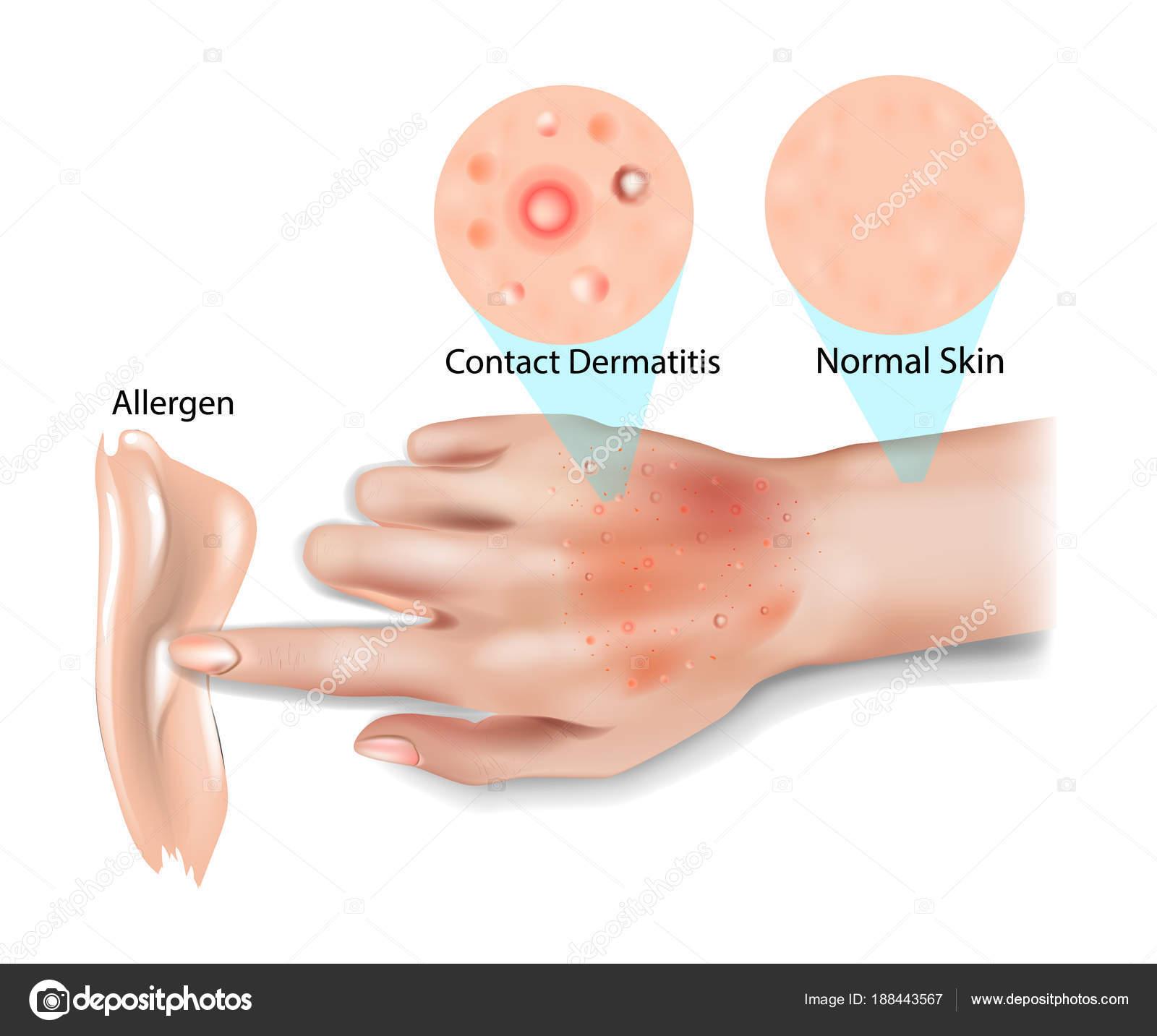 dermatite de contato)