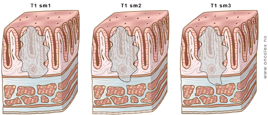 rectal cancer t staging)