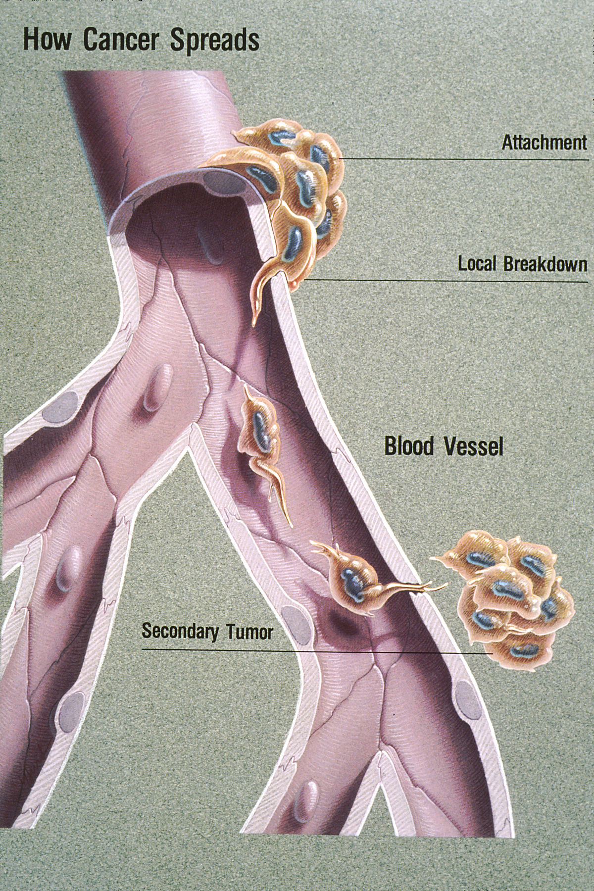 metastatic cancer curable