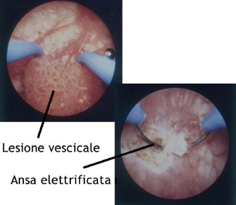 papilloma vescicale infiltrante)
