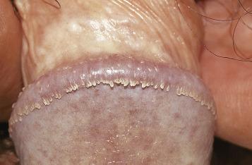 condyloma acuminata mode of transmission)