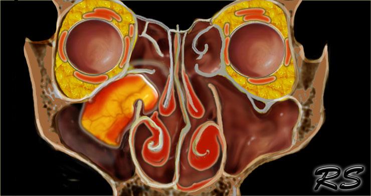 nasal papillomas surgery