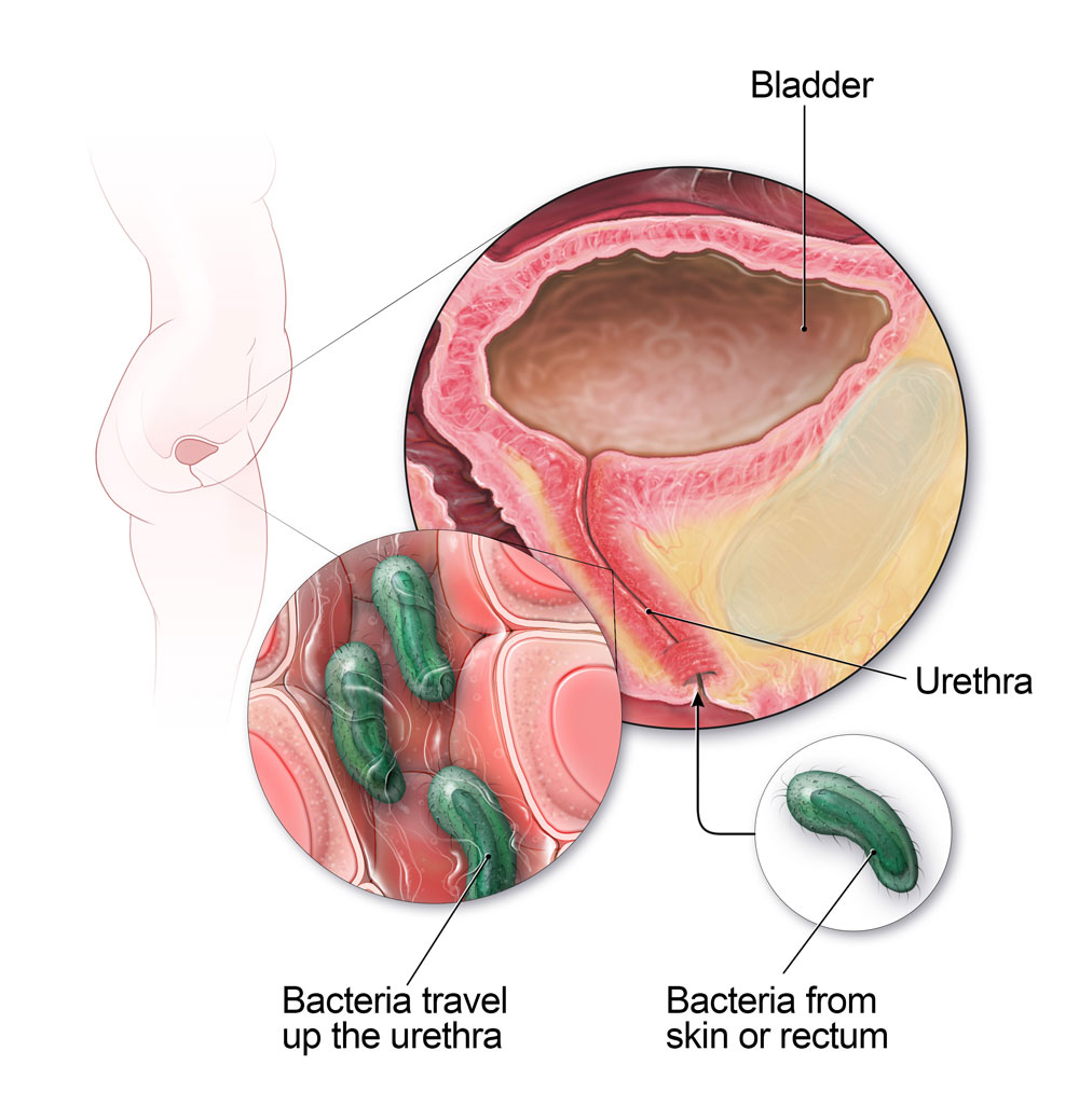 does hpv cause bladder infections