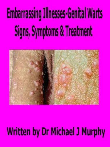 papillomas signs symptoms