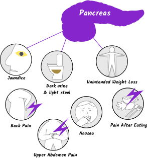 pancreatic cancer early signs)