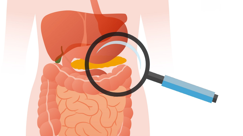 pancreatic cancer vs ibs