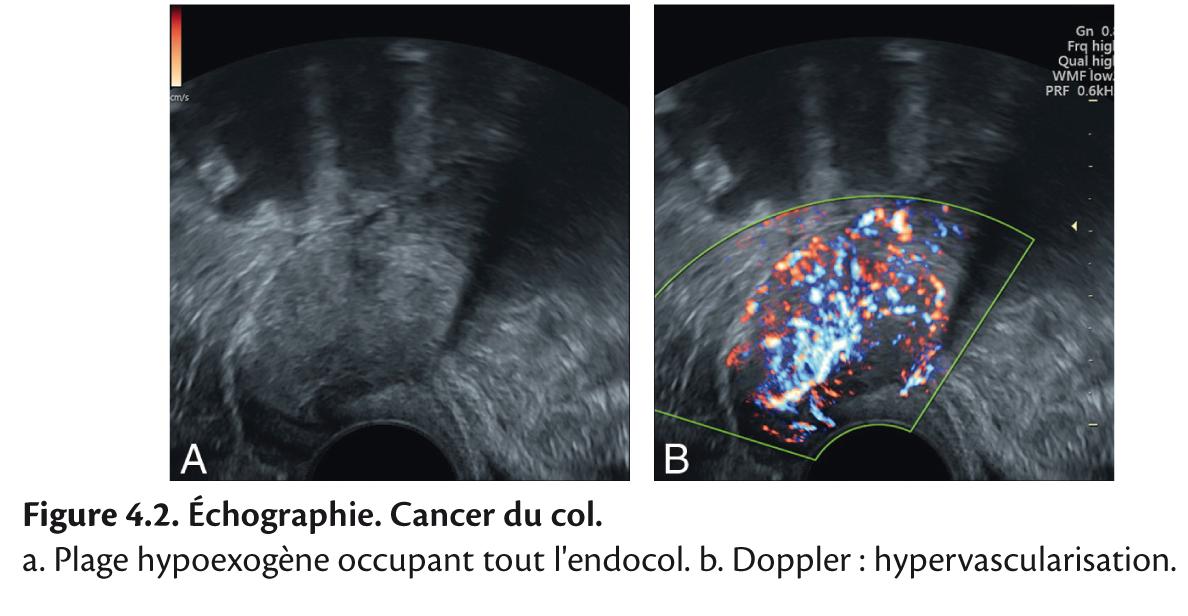 cancer polype uterin)