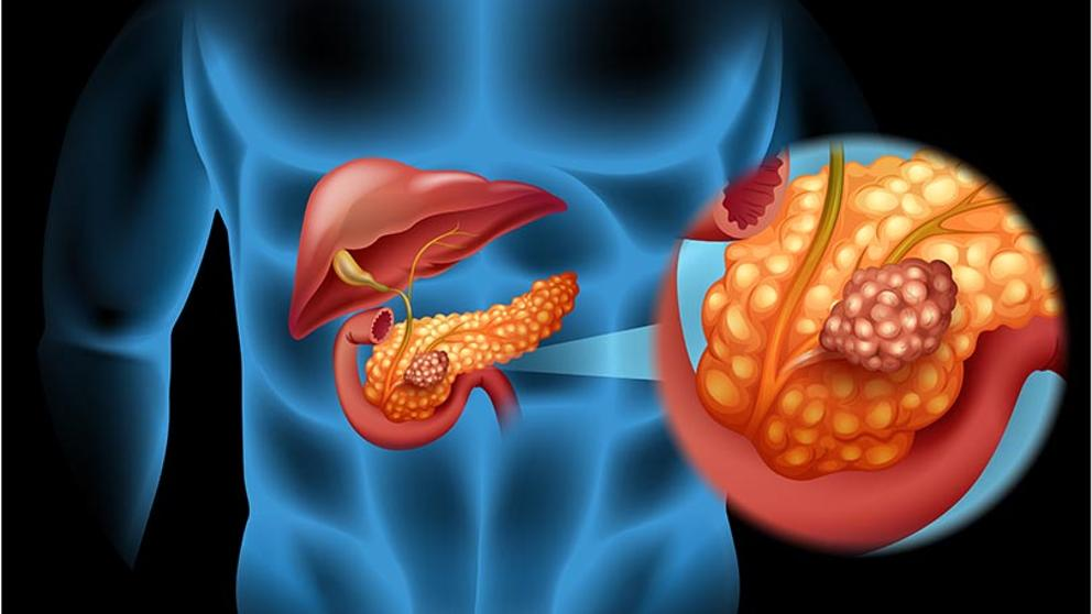 cancer de pancreas donde hace metastasis