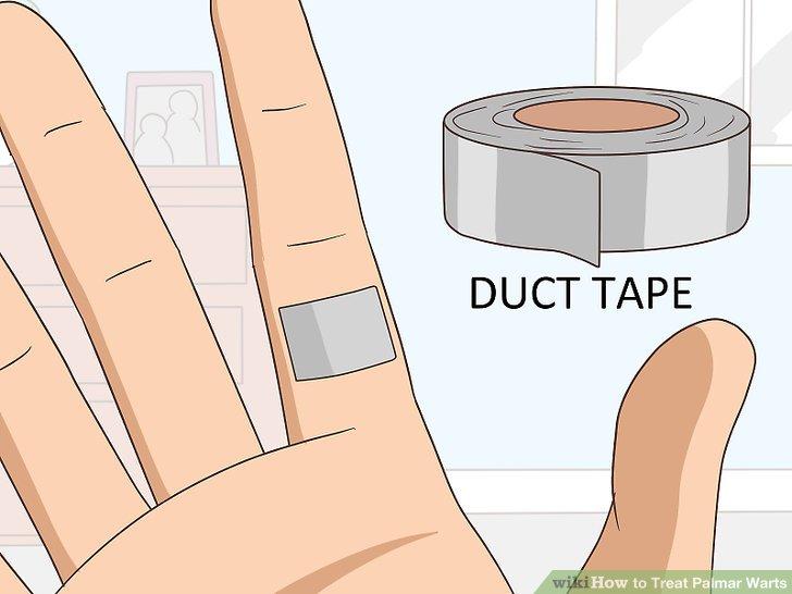 warts on hands palms papilloma virus costo pap test