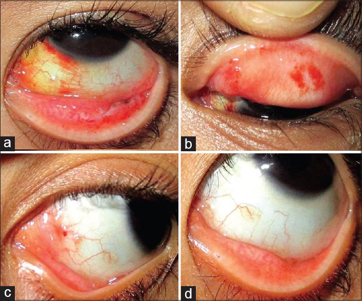 conjunctival viral papilloma