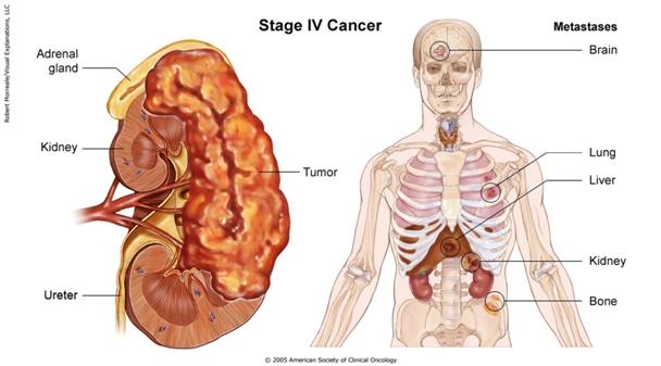 Diagnosticul şi tratamentul tumorilor renale