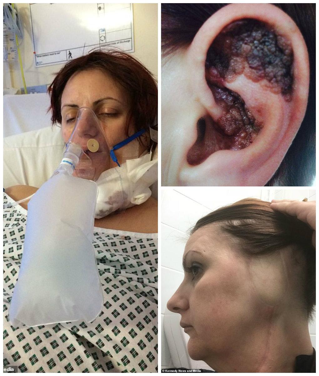 cancerul urechii