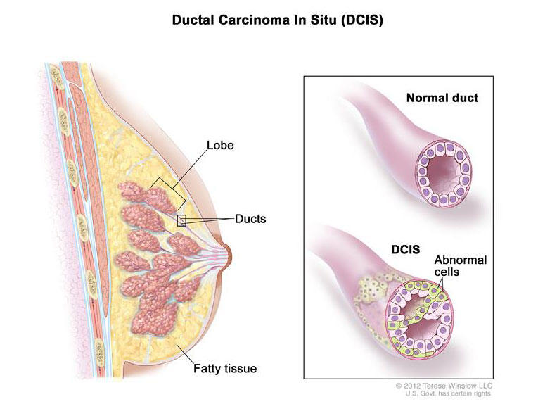 ductal papilloma risk