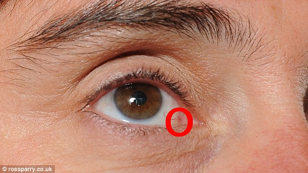 cancer malign la ochi)