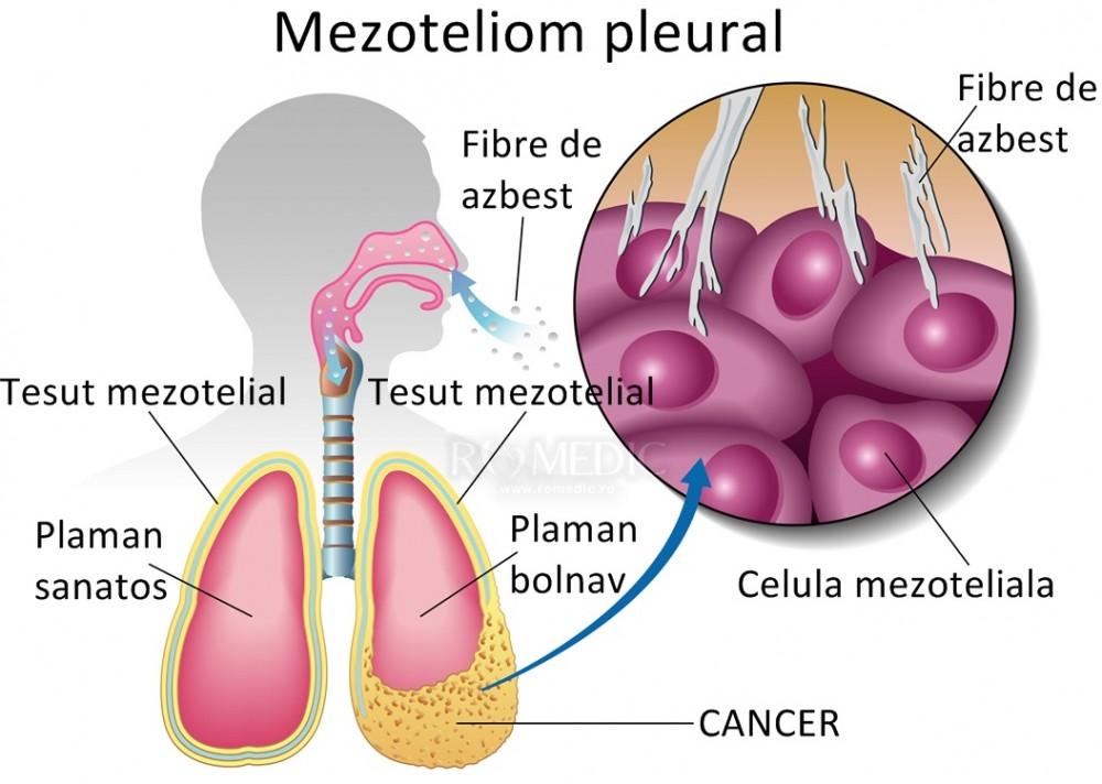 cancer pulmonar mezoteliom)
