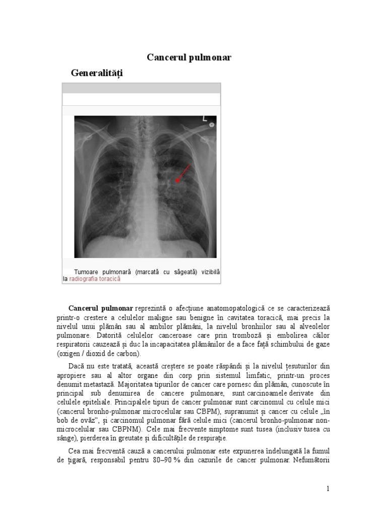 cancerul pulmonar periferic)