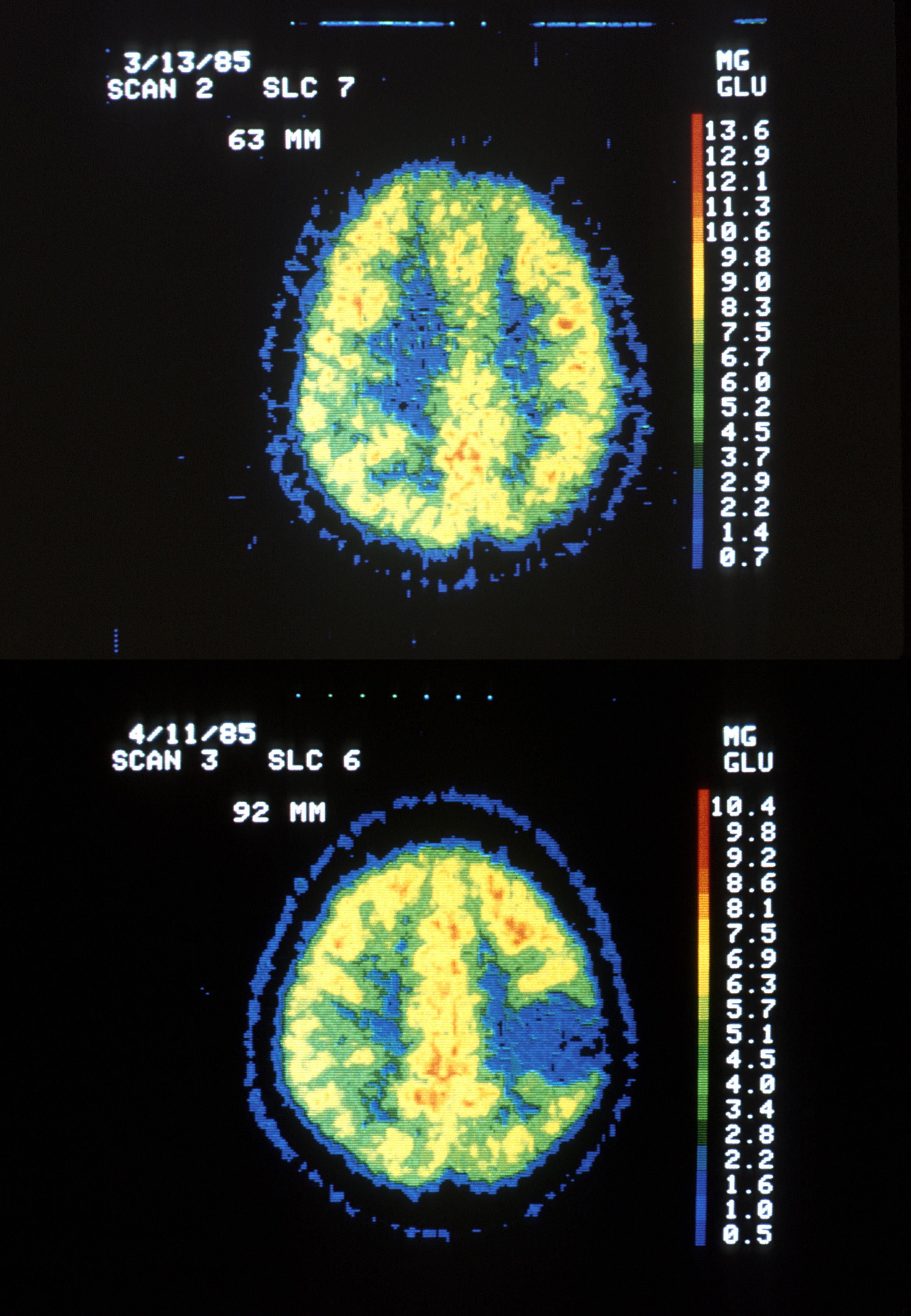 cancer cerebral stade 4