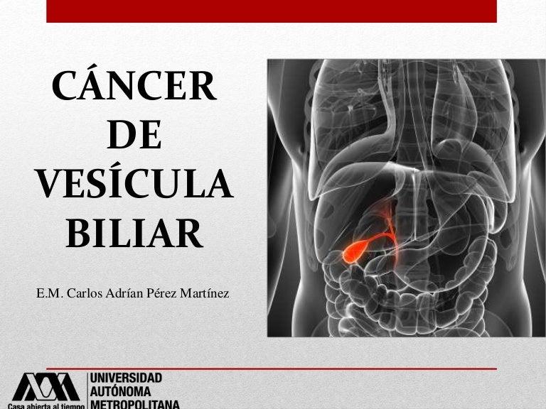 cancer vesicula biliar factores de riesgo)