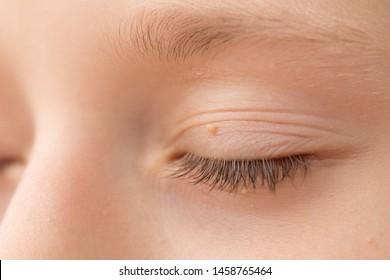 papillomatosis eyelid