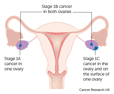 sarcoma cancer stage 1)