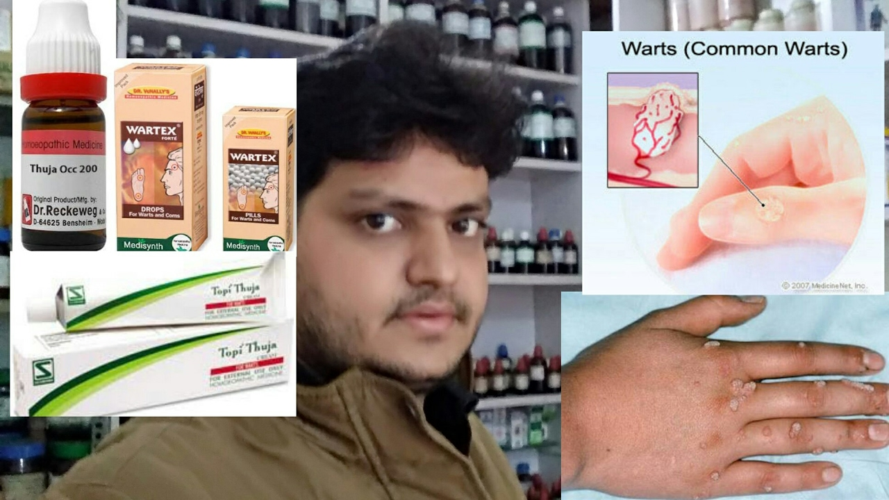 foot warts homeopathic remedy