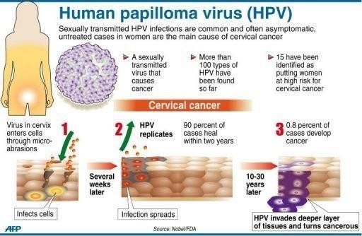 papillomavirus cause cancer)