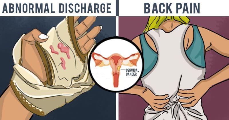 cervical cancer leg pain symptoms)