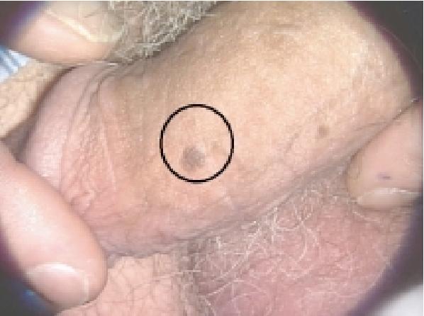 human papillomavirus male