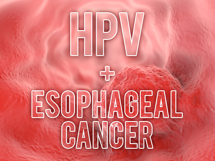hpv causes esophageal cancer