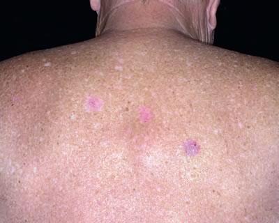 Povestea unei femei diagnosticate cu cancer de piele