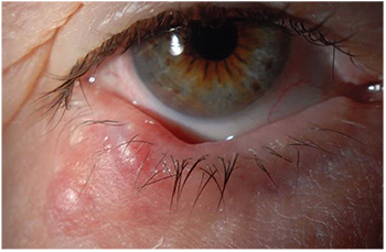 surgical removal of eyelid papilloma
