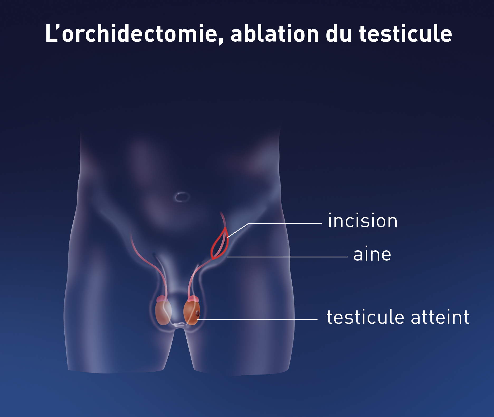 cancer testicule que faire
