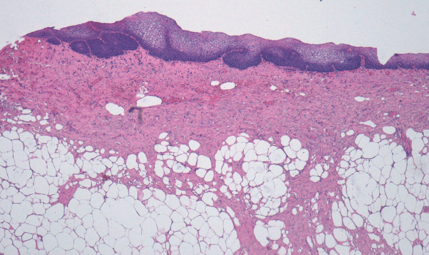 papillary urothelial carcinoma with squamous metaplasia)