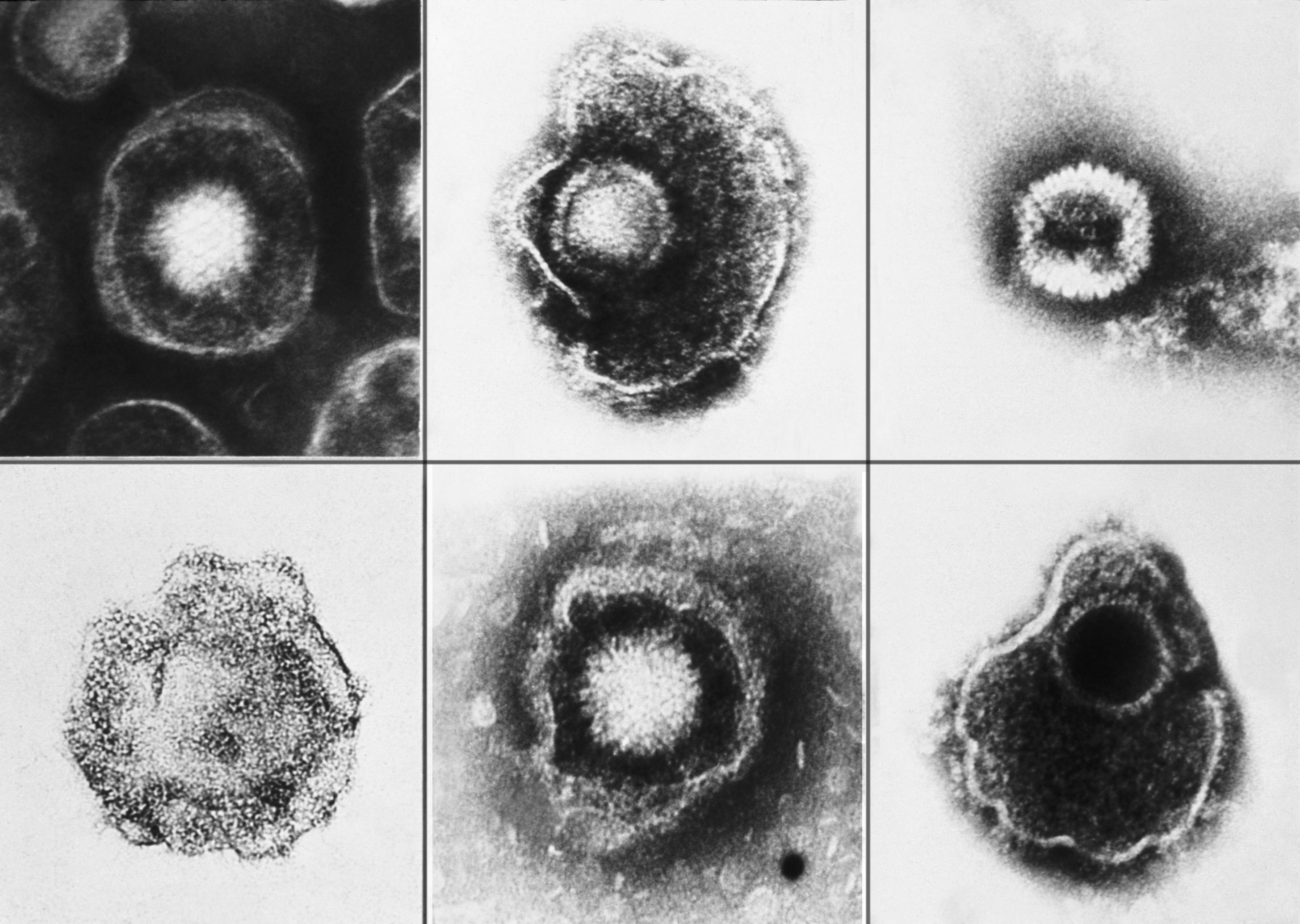 hpv herpes family