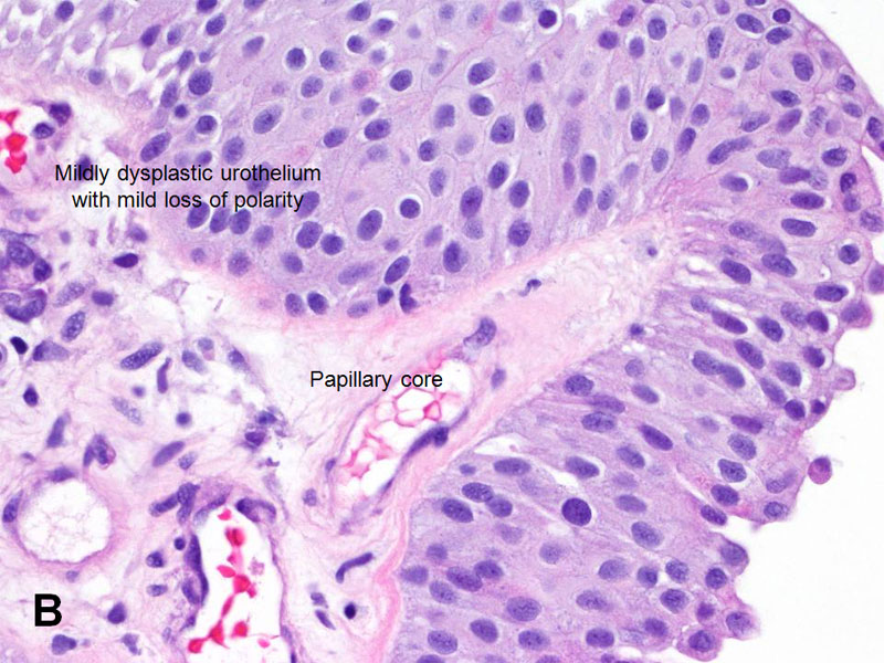 papillary urothelial neoplasm recurrence)