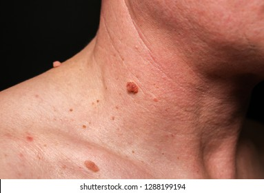 papilloma colli on neck