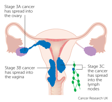 sarcoma cancer stage 3
