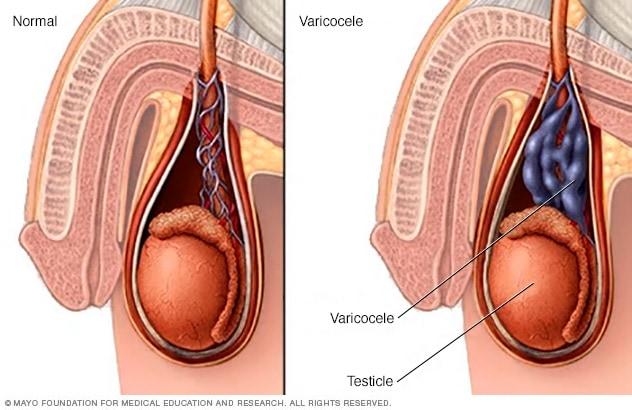 cancer testicule varicocele