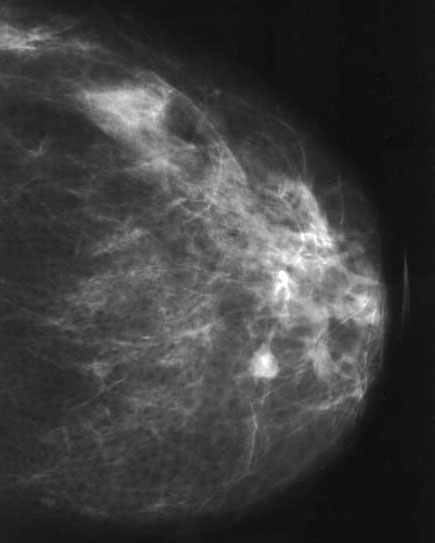 multiple intraductal papillomas treatment cancer colon kras mute