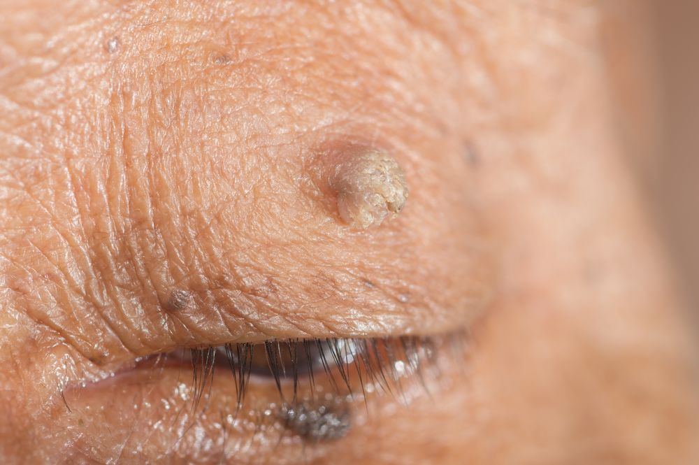 can wart on eyelid be removed)