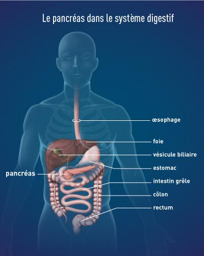 cancer pancreas metastase esperance de vie)