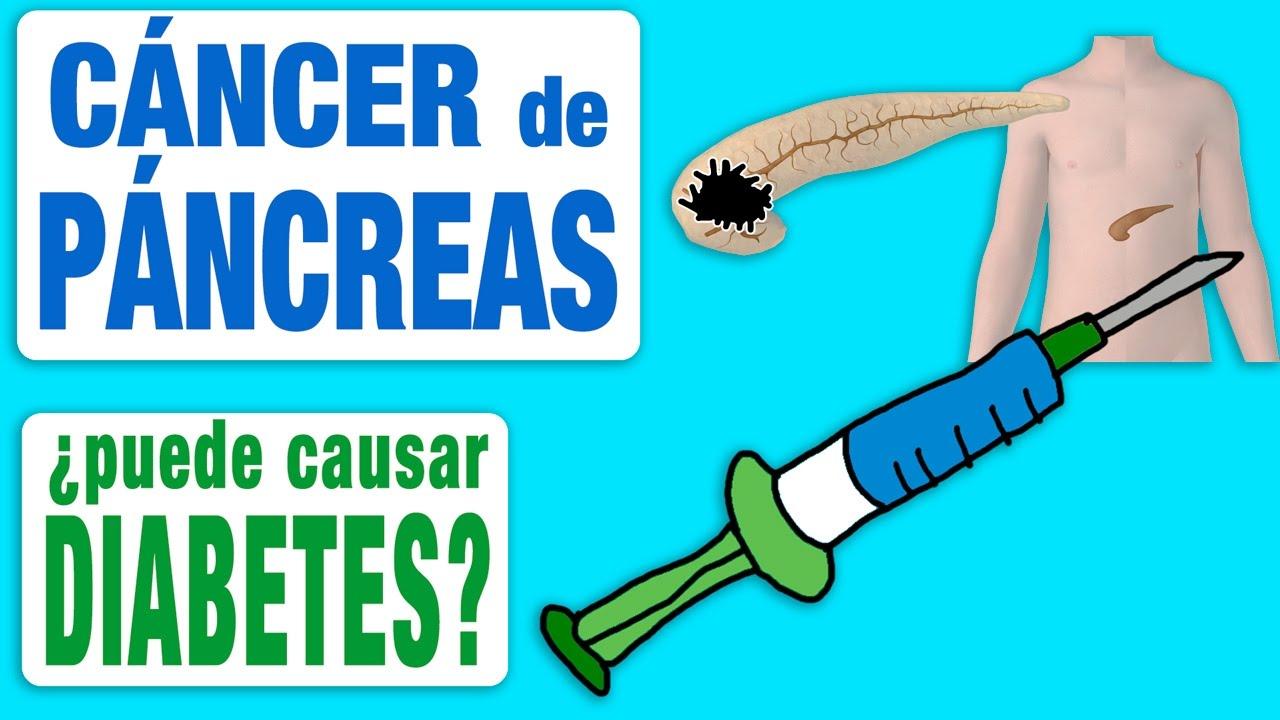 cancer de pancreas y diabetes)
