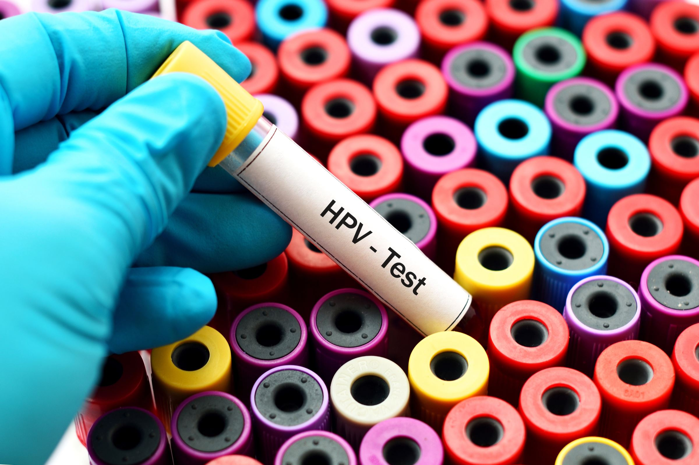 papillomavirus et frottis normal