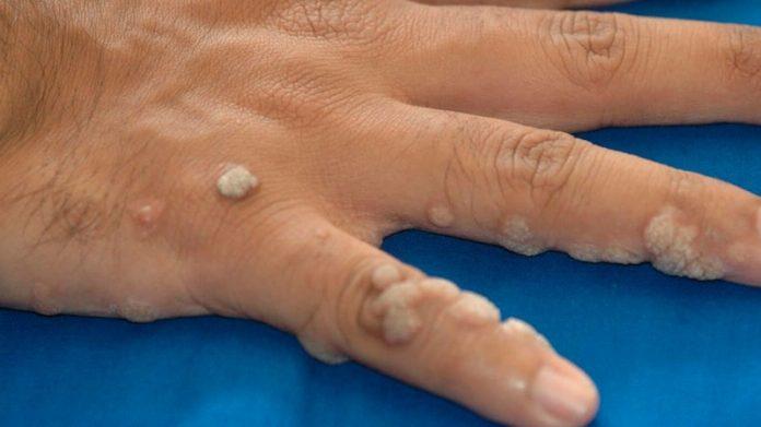 virus del papiloma humano y cancer de piel)