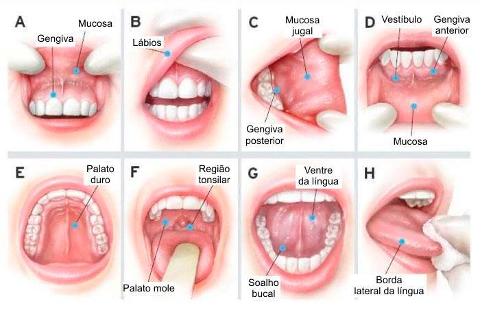 Cancerul laringian -manifestări, investigații, tratament
